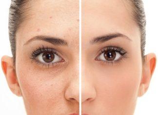 Remove Facial Warts