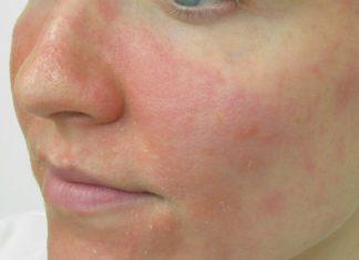 Facial eczema