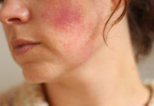 Red Blotches on face