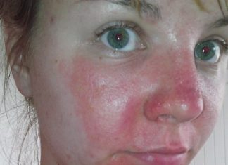 Facial cellulitis picture